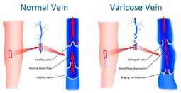 varicose veins laser treatment cost in hyderabad