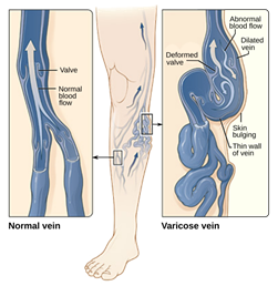 How varicose veins causes