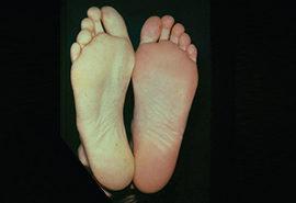 Acute Limb Ischemia (ALI)-Blood clots