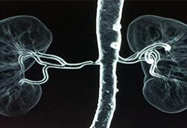 Renal Artery Stenosis