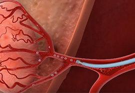 Hemorrhage and Embolisation